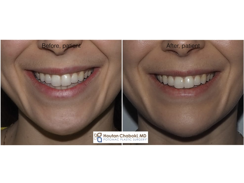 Blog post - before after photos Botox chin dimple injection plastic surgery