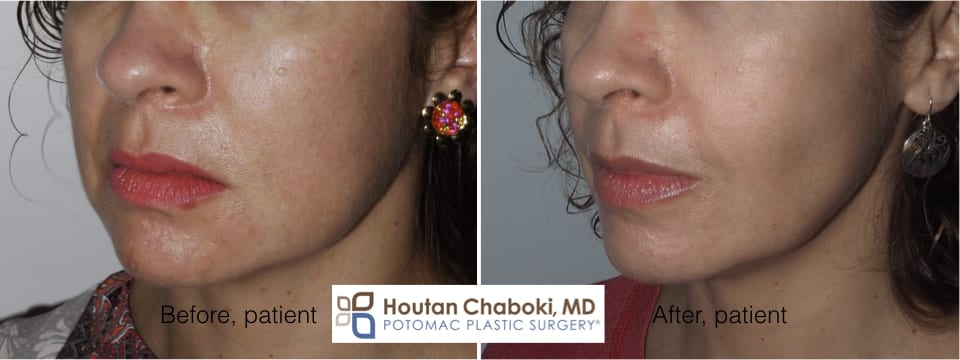 Blog post - before after plastic surgery photos cheek fat reduction buccal facial sculpting contour
