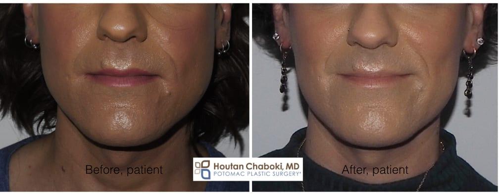 Blog post - before after photos nonsurgical jaw reduction masseter transgender gender dysphoria jawline