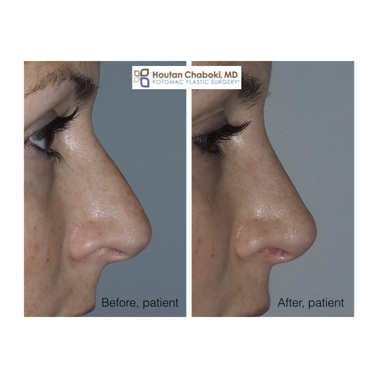 Blog post - before after photos preservation rhinoplasty bump nose jose plastic surgery