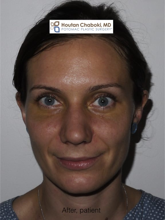 Blog post - before after photos recovery plastic surgery nose eyes chin neck swelling bruising