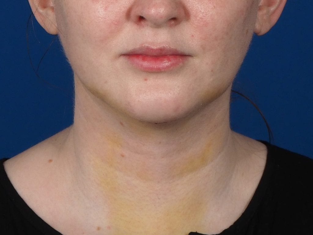 chin implant neck liposuction