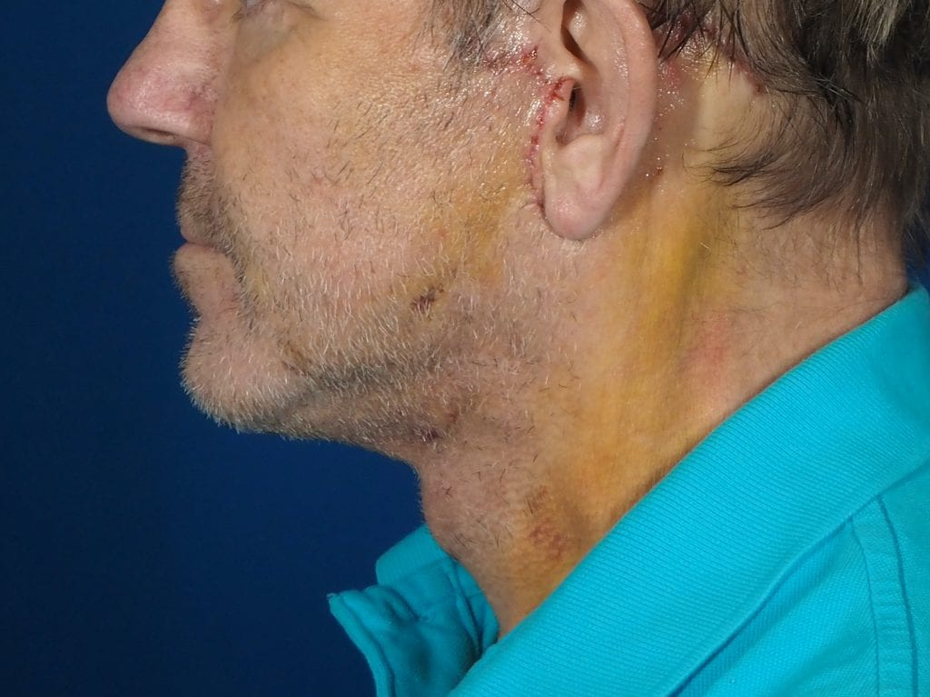 male neck lift recovery