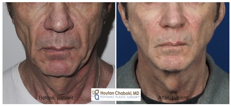 Before after male facelift neck lift chin liposuction facial fat transfer Chaboki plastic surgery
