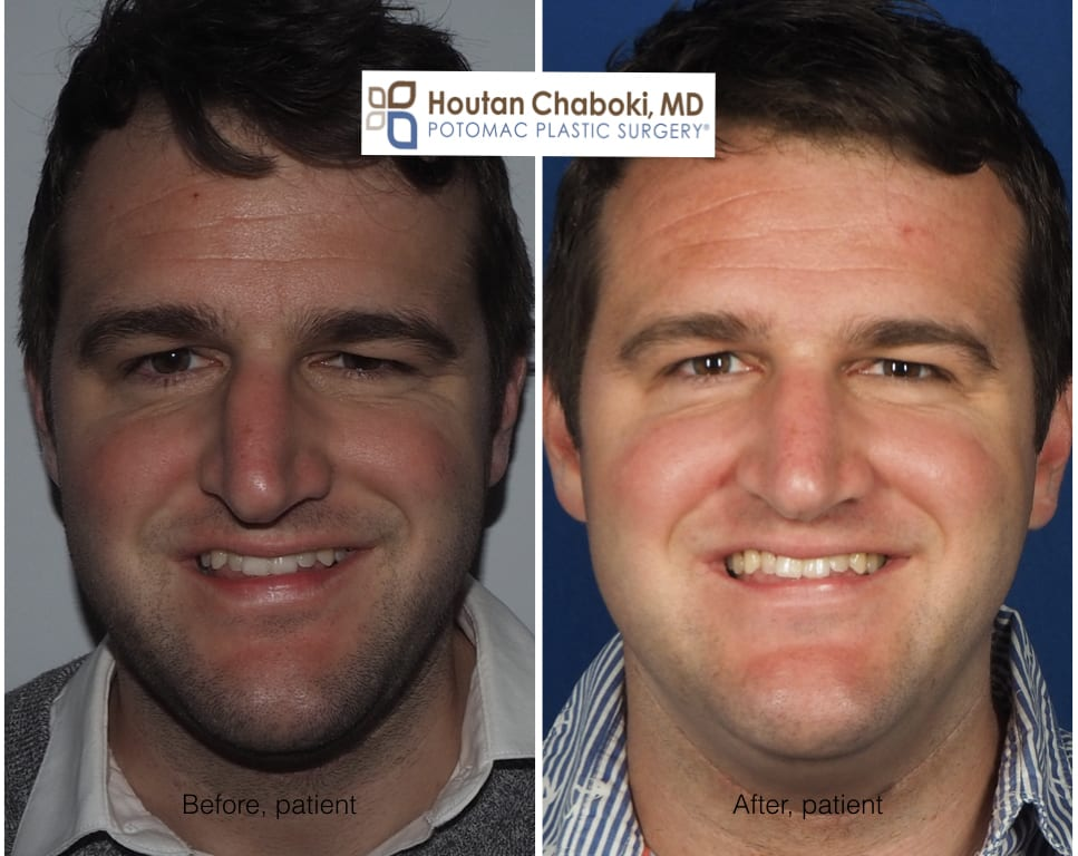 before after preservation rhinoplasty deviated nose septum closed plastic surgery DC