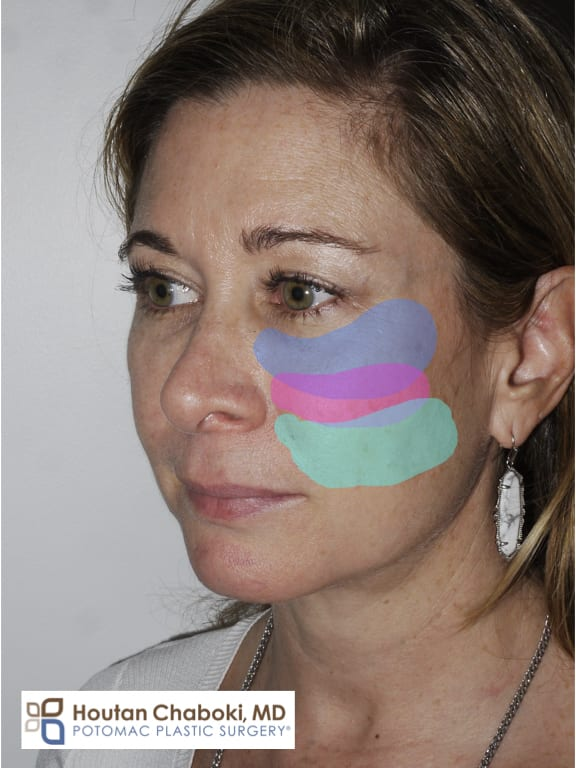 Blog post - Cheek augmentation filler fat transfer PRF implant silicone facelift