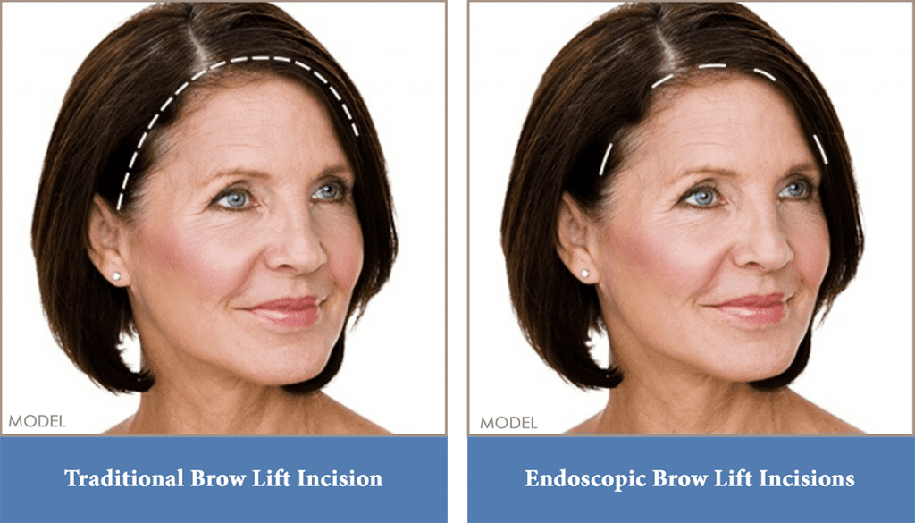 Brow lift incision