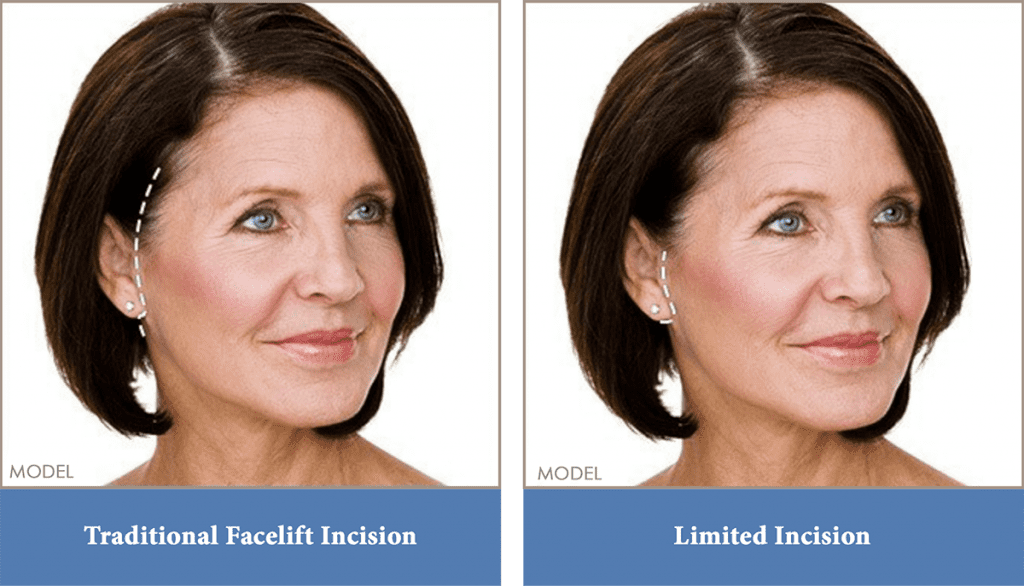 Facelift incision