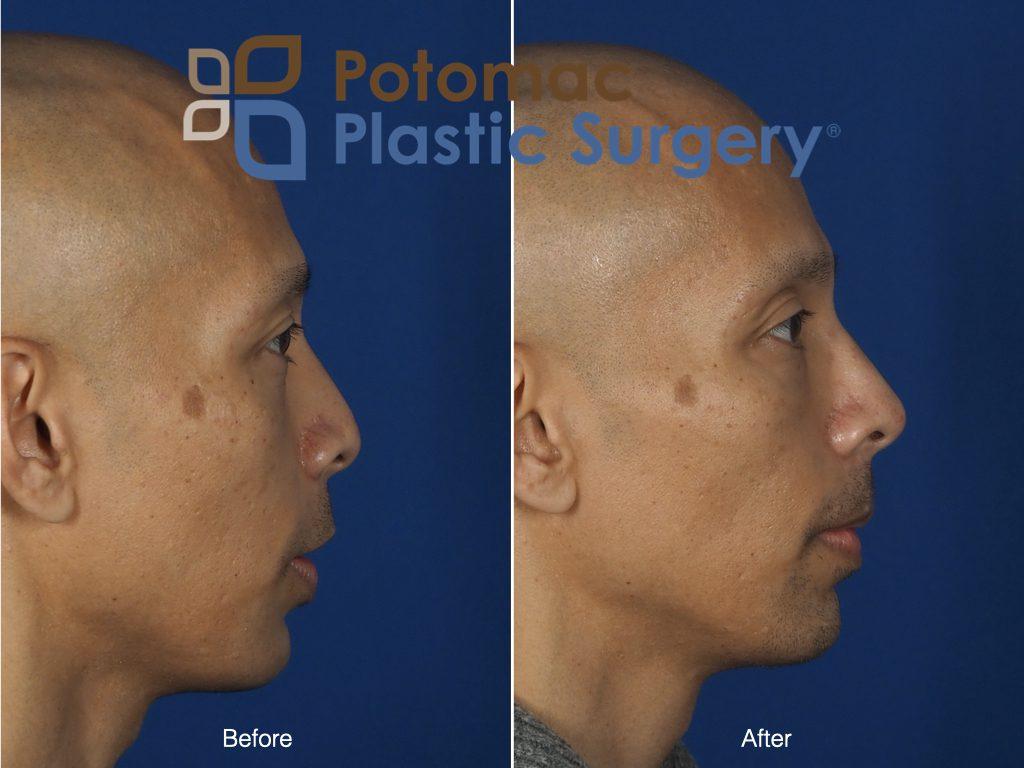 liquid nose job filler injection
